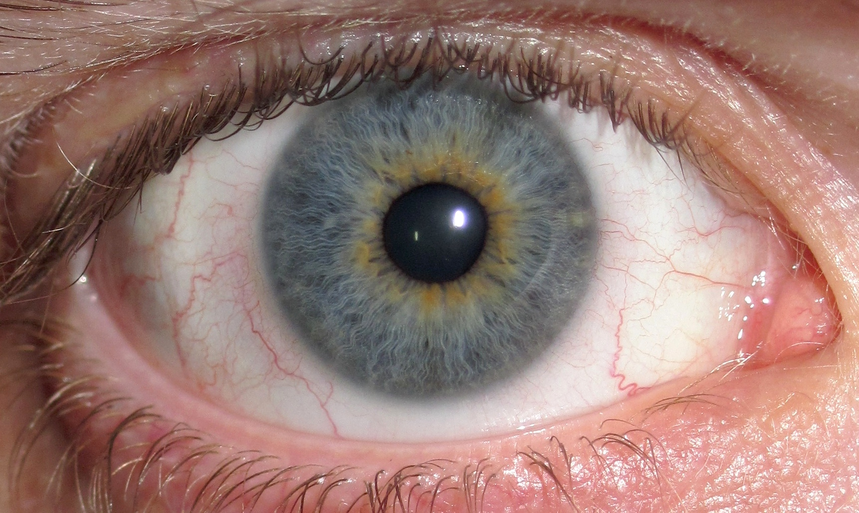Cataract Symptoms Depression A Significant Side Effect